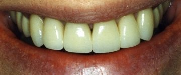 Excellent work by a general dentist