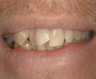 Crooked teeth - before